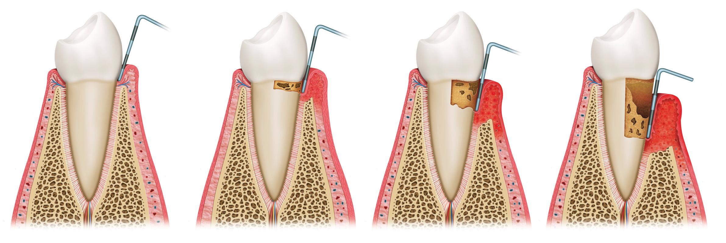 parodontologie zahnarztpraxis dr. ascher münchen bogenhausen