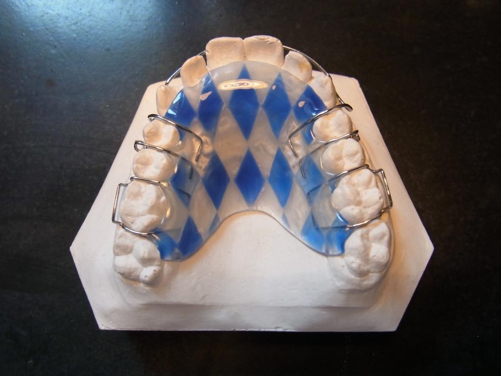 lose zahnspange, zahnarztpraxis dr. ascher, münchen bogenhausen