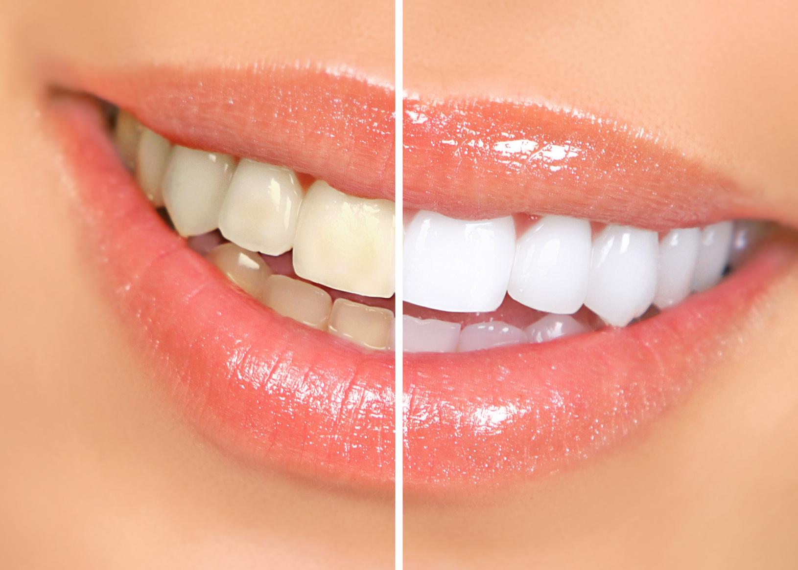 bleaching, weiße zähne, vorher nachher